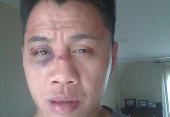"""Cung Le's Face, Remixed"" - a work by Wanderlei Silva"