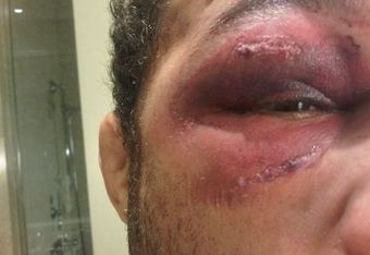 Josh's eye, 24 hours after UFC 124