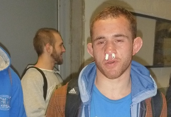 Following a big win, bantamweight Anthony Leone prepares to drive seven hours with a broken nose.
