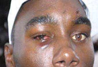 Anthony Johnson's Eye-post Koscheck fight