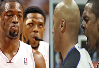 Dwyane Wade and Udonis Haslem show off their injuries in game five of the playoffs against the Pacers (left). Rajon Rondo bumps into a referee while angrily pleading his case in game 1 of the playoffs against the Atlanta Hawks (right).
