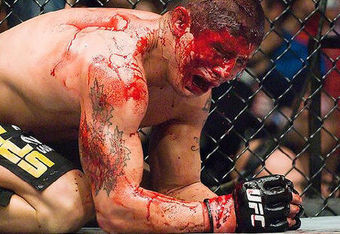 Mmabloodbaths_crop_340x234