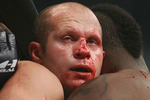 Fedor-emelianenko_nose_crop_150x100