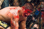 Mma_bloodbaths_ufc_blood-s468x377-15625-580_crop_150x100