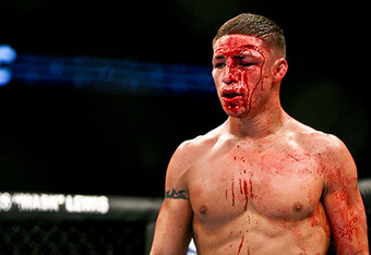 Diego Sanchez Diego Sanchez is Friggen tough MMAjunkiecom MMA Forums