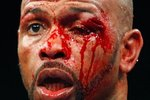 Roy-jones-jr-cut-eye_crop_150x100