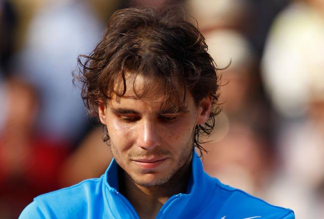 Nadal hair loss