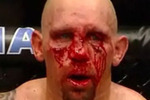 Carwin_bloody_face_large_crop_150x100