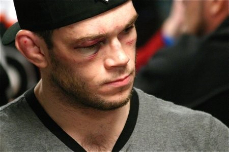 UFC 134 Preview: Why You Should Feel Very Sorry for Forrest Griffin