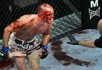 Chris_lytle_ufc110_crop_340x234
