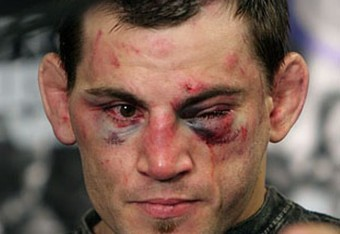 Jon-fitch-injured_crop_340x234