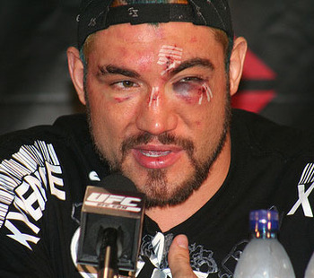 ufc rules on steroids