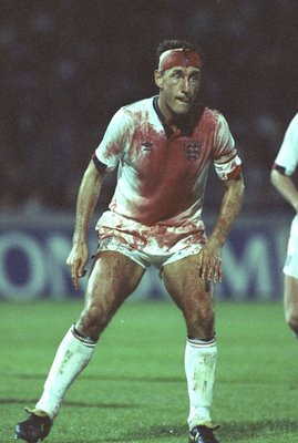 6 Sep 1989:  A bloody Terry Butcher in action during the World Cup Qualifier against Sweden at Stockholm, Sweden. The game was drawn 0-0. \ Mandatory Credit: David Cannon /Allsport
