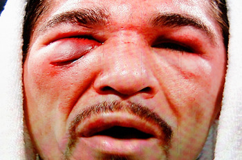 ARLINGTON, TX - NOVEMBER 13:  The likeness of Antonio Margarito (black trunks) of Mexico is seen on the giant screen as he is interviewed after he lost to Manny Pacquiao (white trunks) of the Philippines during their WBC World Super Welterweight Title bou