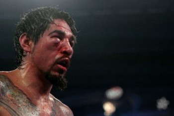 Antonio-margarito-face_display_image