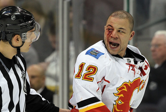 DALLAS, TX - DECEMBER 23:  Right wing Jarome Iginla #12 of the Calgary Flames bleeds after a fight against Jamie Benn #14 of the Dallas Stars at American Airlines Center on December 23, 2010 in Dallas, Texas.  (Photo by Ronald Martinez/Getty Images)