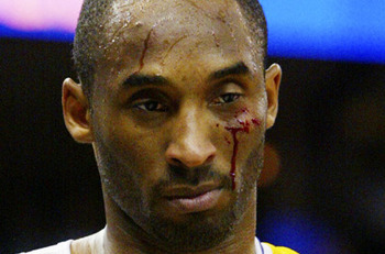Kobebloody_display_image