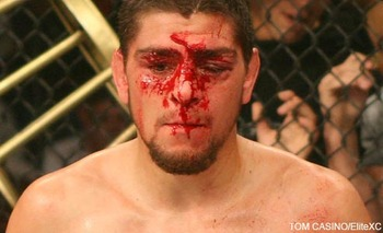 Nick-diaz-busted_display_image