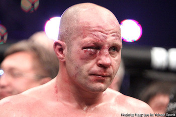 Fedor-busted-eye_display_image