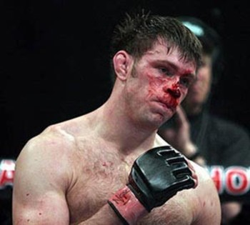 Forrest_griffin1_display_image