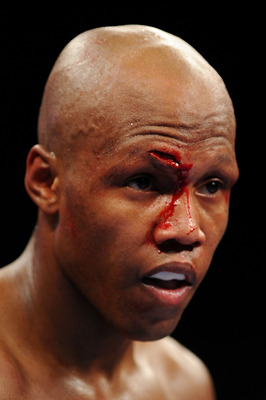 NEW YORK - NOVEMBER 08:  Zab Judah looks on with blood dripping down his face from a wound received from opponent Ernest Johnson during their Welterweight bout at Madison Square Garden November 8, 2008 in New York City.  (Photo by Al Bello/Getty Images)
