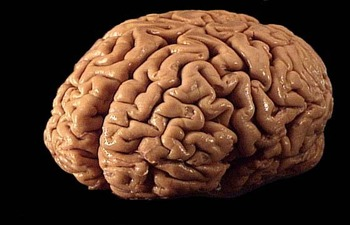 Brain_display_image