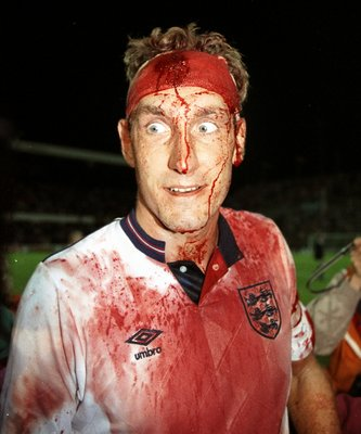 Terry Butcher, bloodied but not beaten