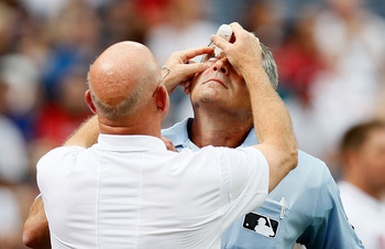 ATLANTA - JUNE 30:  Trainer Jeff Porter (left) of the Atlanta Braves attends to the right eye of homeplate umpire John Hirschbeck #17 (right) during the game against the Washington Nationals at Turner Field on June 30, 2010 in Atlanta, Georgia.  (Photo by