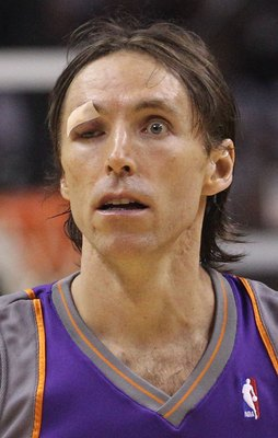 SAN ANTONIO - MAY 09:  Guard Steve Nash #13 of the Phoenix Suns after receiving six stitches to his eye against the San Antonio Spurs in Game Four of the Western Conference Semifinals during the 2010 NBA Playoffs at AT&T Center on May 9, 2010 in San Anton