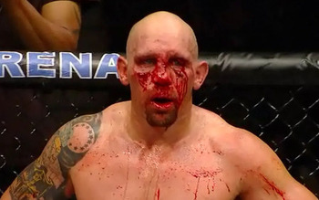Carwin_bloody_face_large_display_image