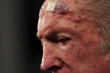 ALAMEDA, CA - JANUARY 18: A bandage is seen on the forehead of Oakland Raiders owner Al Davis as he speaks during a press conference on January 18, 2011 in Alameda, California. Hue Jackson was introduced as the new coach of the Oakland Raiders, replacing