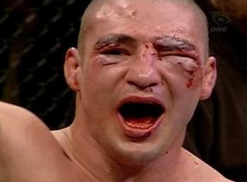 Ufc broken face
