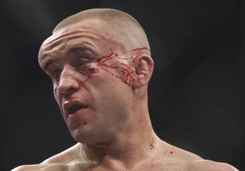 Mark-hominick-face-after-fight-595x446_display_image