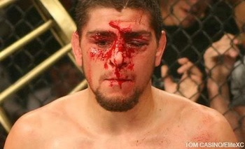 Nick-diaz-blood_display_image