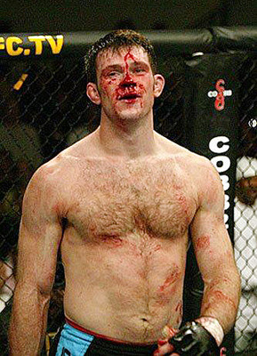 Forrest-griffin_display_image
