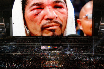 Margarito's right eye after hard fight with Manny Pacquiao in late last year.