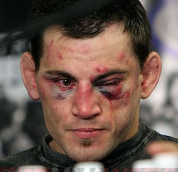 Jon-fitch-injured_display_image