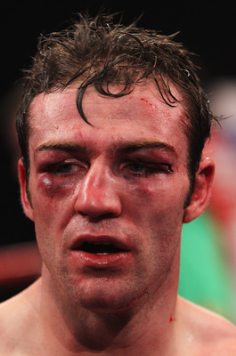 Matthew Macklin (If you think this is bad. You should see the other guy.)