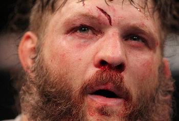 25 UFC Fighters Whose Careers Have Plateaued