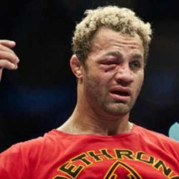 Josh-koscheck-eye2_display_image