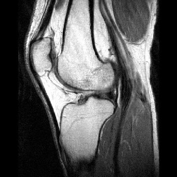 Knee_mri_picture_display_image