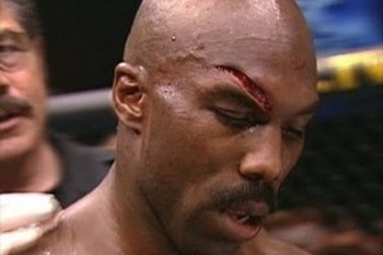 Worst-cut-in-ufc-mma-history-belfort-vs-eastman_display_image