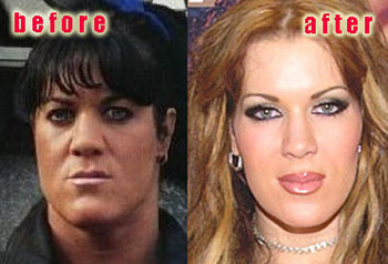 This image from GoodPlasticSurgery.com shows the transition Chyna has made over the years.