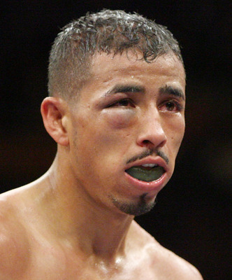 LAS VEGAS - JULY 26:  Giovani Segura's eye starts to swell during his interim WBA light flyweight title fight against Cesar Canchila at the MGM Grand Garden Arena July 26, 2008 in Las Vegas, Nevada. Canchila won by unanimous decision.  (Photo by Ethan Mil