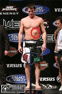 Chael Sonnen's deformed rib.  Credit: tapology.com