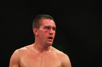 SYDNEY, AUSTRALIA - MARCH 03:  Kyle Noke of Australia looks on bloodied after being defeated during the UFC On FX middleweight bout between Andrew Craig and Kyle Noke at Allphones Arena on March 3, 2012 in Sydney, Australia.  (Photo by Mark Kolbe/Getty Im