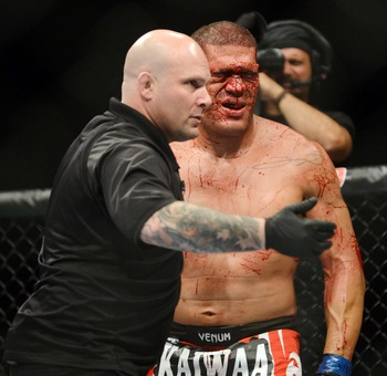 """Bigfoot"" bloodied"