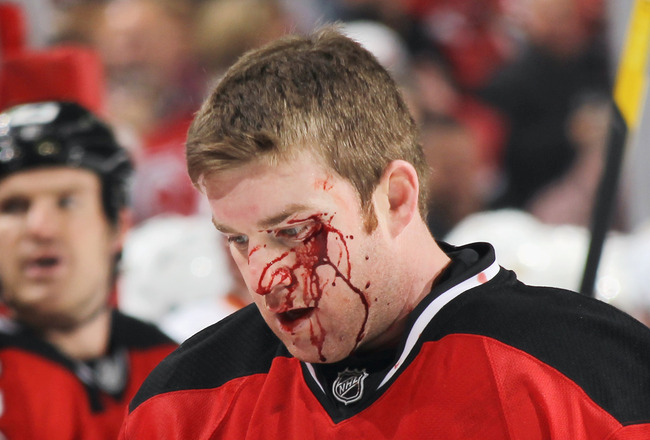 Have missed Recent nhl facial injuries