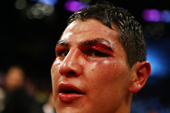Cano fought most of the fight with that beauty above his eye.