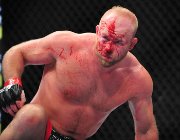 Boetsch couldn't last after being bloodied that badly.